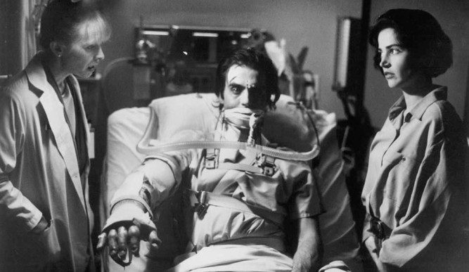 1924_hands_of_orlac_037_lindsey_duncan_jeff_fahey_kim_delaney_body_parts_1991